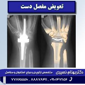 تعویض مفصل دست