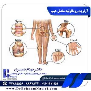 آرتریت روماتوئید مفصل هیپ