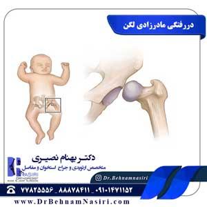 دررفتگی مادرزادی مفصل لگن