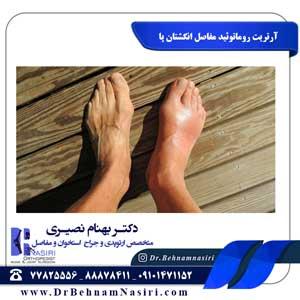 آرتریت روماتوئید مفاصل انگشتان پا