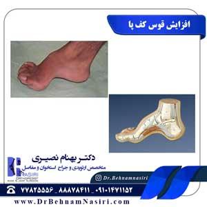 افزایش قوس کف پا