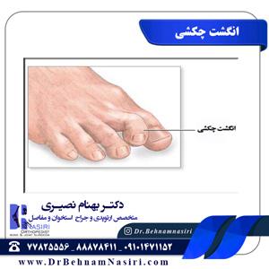 انگشت چکشی